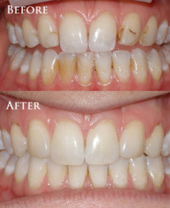 Cosmetic Contouring to Reshape Teeth